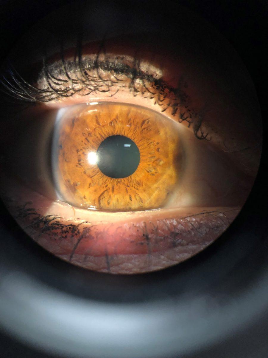 Seven Options in Correcting or Refractive Eye Procedures